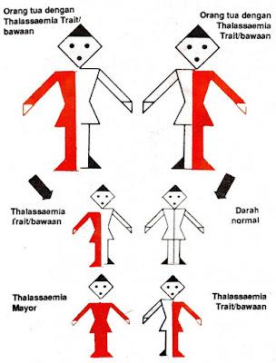 Pengertian penyakit talasemia, Gejala, Pencegahan dan Pengobatan