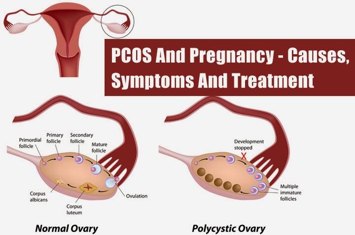 SIndroma ovarium polikistik (PCOS) sebagai penyebab sulit hamil