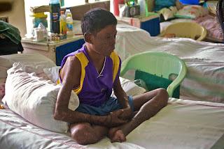 Punca, Simptom, Dan Rawatan Berkesan Pada Penyakit Kusta
