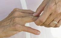 Sin evidencia científica tratamiento de células madre para artritis