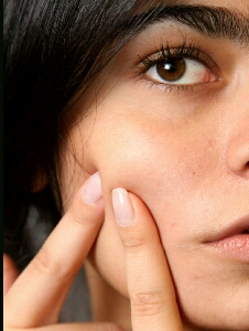 healthy tips to remove acne naturally