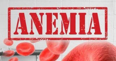 Anemia - Penyebab, Tanda, Gejala, dan Pencegahan