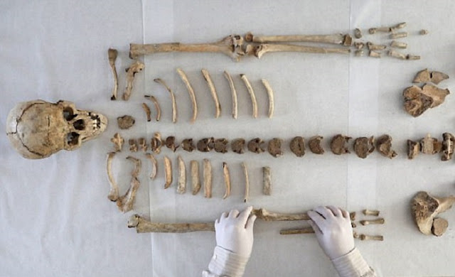 Skeleton with oldest known case of leprsoy discovered in Hungary