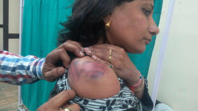 Anu Jain, a Delhi High Court advocate was brutally beaten with iron rods.