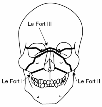 ABC Radiology Blog: Le Fort Classification