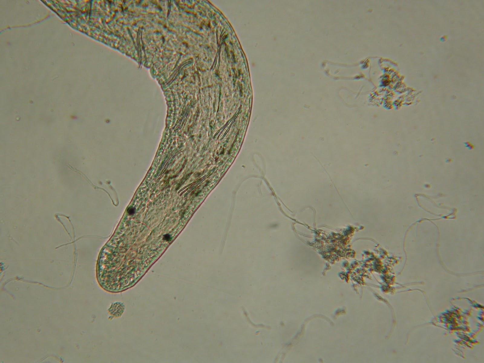 paraziták az őz tüdőben helminthiasis patogenezis