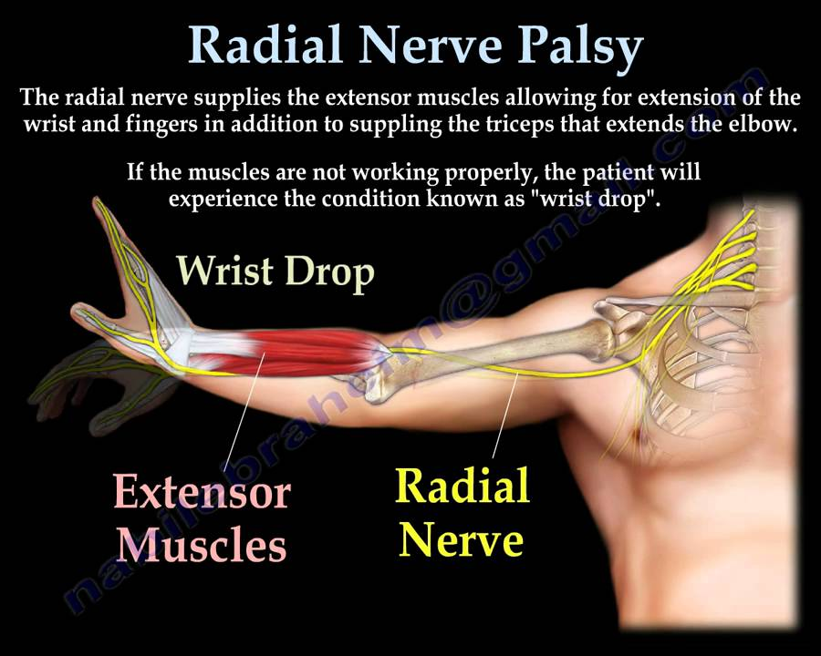 Physio Knowledge Bd Radial Nerve Palsy