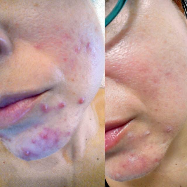 peeling-contra-acne
