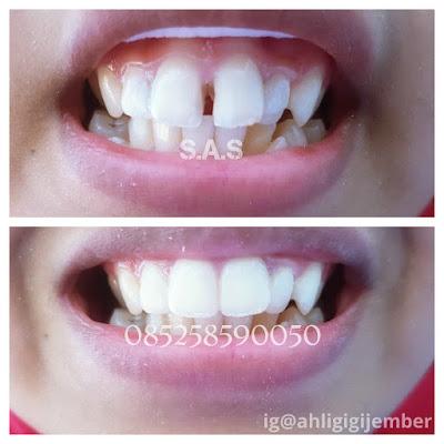 Foto hasil perbaikan oenambalan gigi depan berlubang hitam dan keropos