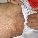 Nama Salep Obat gatal eksim pada kulit selangkangan alami