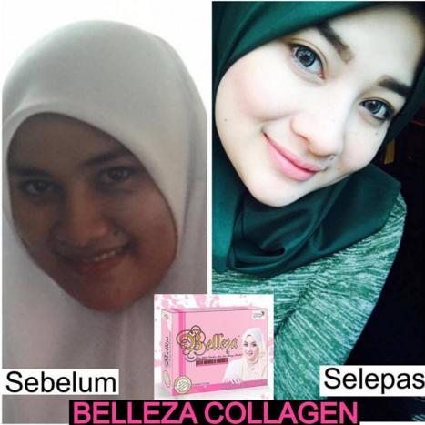 belleza collagen pengasas