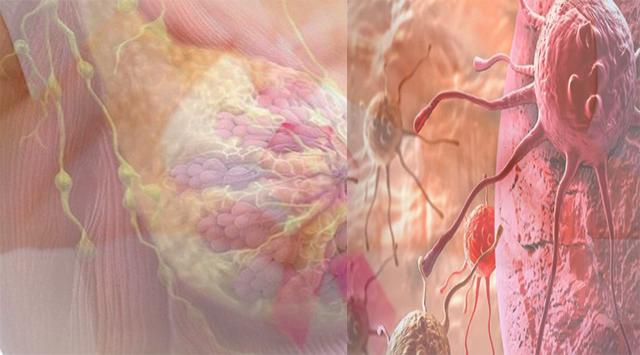 Kanker Payudara kanker  obat kanker  penyakit kanker  obat kangker  penyakit kangker  obat tumor  obat tradisional kanker  gejala kanker  obat tradisional tumor  obat tradisional kanker hati  tanda tanda kanker  pengobatan kanker  kangker payu darah  penyakit kanker hati  tumor mamae  obat kanker alami  kanker mamae  penyakit cancer  tumor mammae  stadium kanker  obat untuk kanker  kanker hati adalah  gejala penyakit kanker  pengobatan penyakit kanker  mengobati kanker  kangker panyudara  obat kanker kulit  obat herbal untuk kanker hati  obat obat kanker  gejala kangker