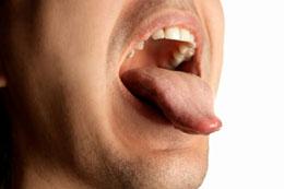 causes de gout salé dans la bouche
