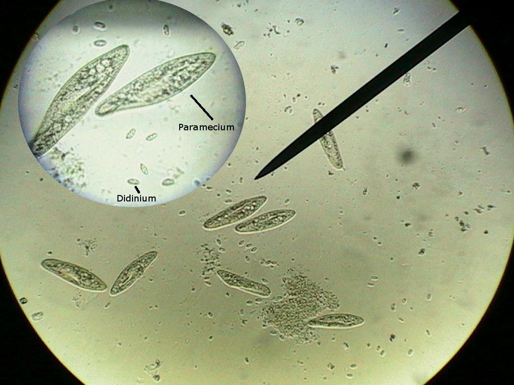 Pelatihan pertama pusat penelitian kelapa sawit medan tentang isolasi bakteri selulolitik, proteolitik, lipolitik dan lignolitik dari limbah kelapa sawit telah dilaksanakan pada tanggal 5 september 2011 silam. BIOLOGI I: LAPORAN PRAKTIKUM MIKROBIOLOGI UMUM PENGAMATAN
