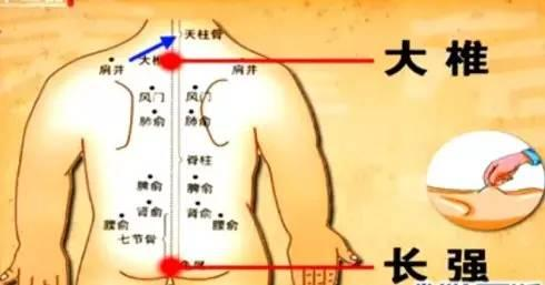膀胱經很重要,常揉按,捏脊疏通氣機(腰酸背痛)
