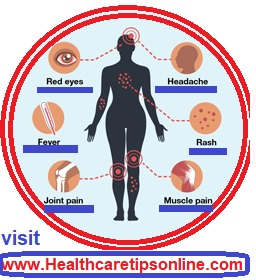 How long does Zika virus symptoms,Zika virus symptoms
