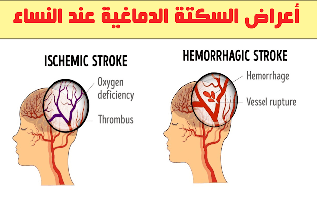 خطير: أعراض السكتات الدماغية عند النساء