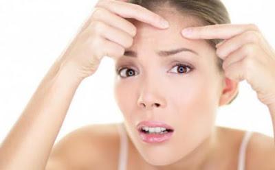 Tips Menghilangkan Jerawat Alami Tanpa Efek Samping 1