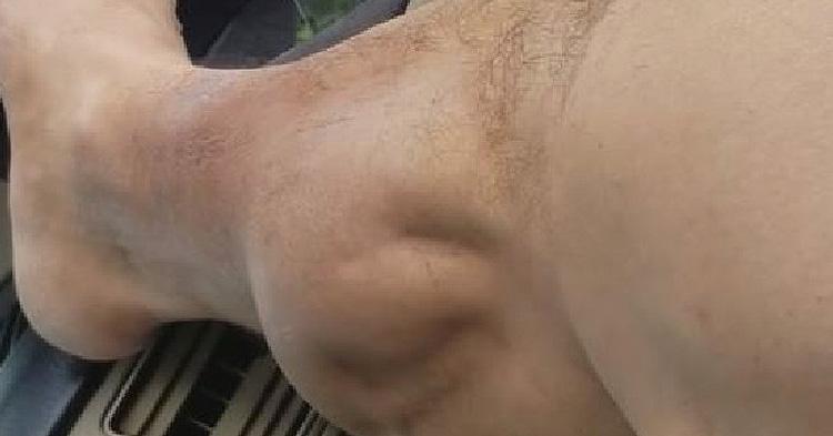 The leg cramp video went viral on social media websites.