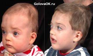 фото ребенка с краниосиностозом в период болезни и после лечения