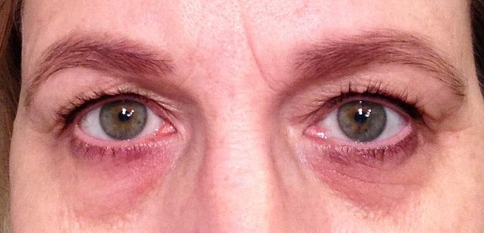 premie ledsagare ansiktsbehandling