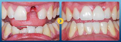 Gãy răng cửa có thể phục hình hiệu quả bằng cách cấy răng implant