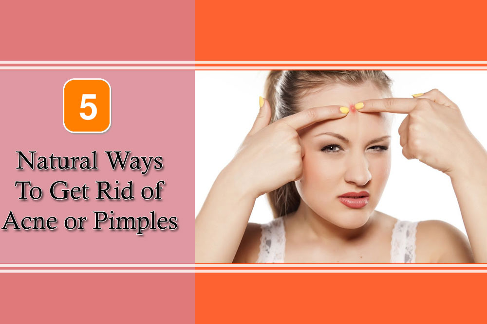 5 Natural ways to get rid of Acne or Pimples