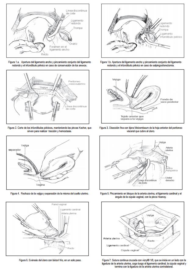 Histerectomia total tecnica quirurgica pdf
