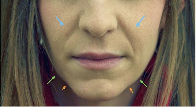 """La imagen muestra el descolgamiento de los pómulos produce surcos marcados en los laterales de los labios (flechas azules). Además aparece tejido que desciende de la línea mandibular (flechas verdes) que en el lenguaje cotidiano se conocen como """"cocochas"""". En contraposición con la barbilla, se produce un hundimiento, acentuando más la pérdida de contorno (flechas naranjas)"""
