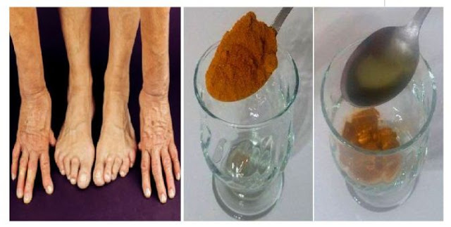 Nature's Most Powerful Herb Will Help You Get Rid of Arthritis and Joint Pain in a Matter of Days