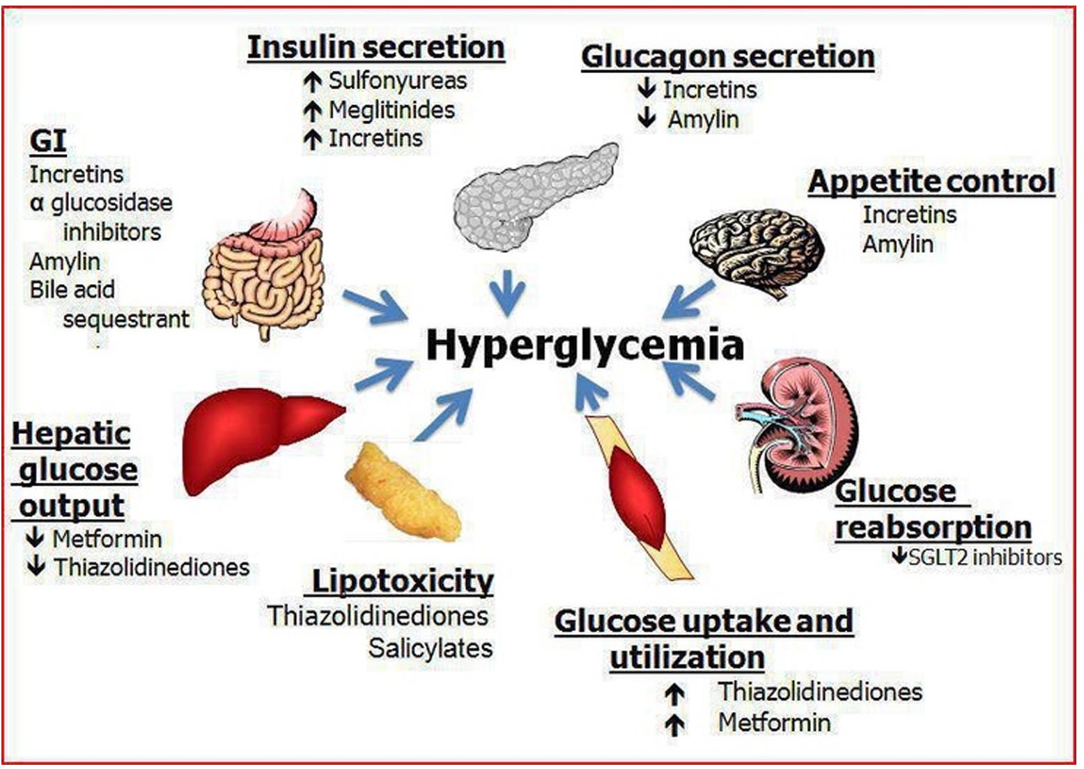 what to know about hyperglycemia | inspiration blog, Skeleton