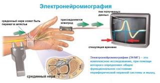 Электронейромиография Одесса, Где в Одессе можно сделать энмг? (Таирово, Центр, поселок Котовского)
