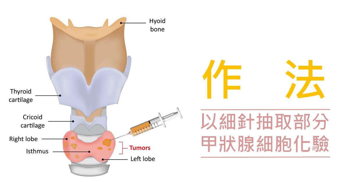 梁宗榮 醫師: 是好是壞:甲狀腺細針穿刺告訴妳