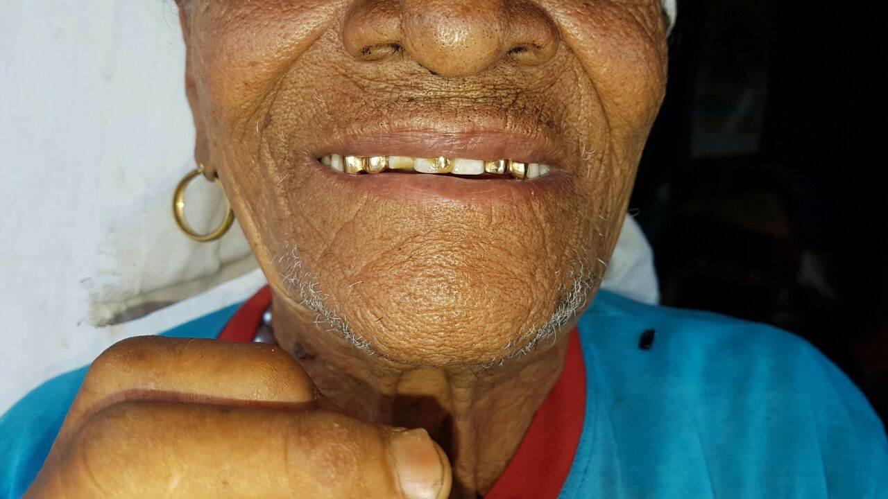dentadura de ouro da avó