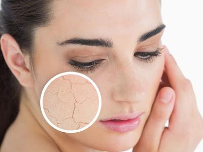 kusam tentu menimbulkan kulit tidak kelihatan menarik dan tentunya bisa menimbulkan anda ku Cara Alami Mengatasi Kulit Kering, Bersisik & Kusam