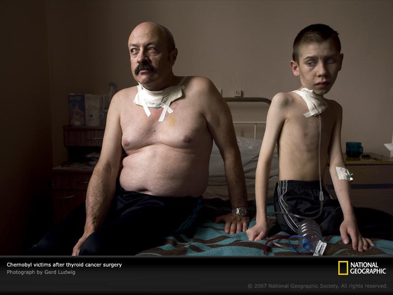 Tshernobyl Epämuodostumat