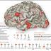 Berbagai Penyebab kerusakan Otak! Kecanduan XX Penyebab Terparah