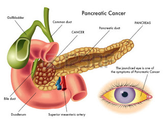 Pancreatic Cancer Stages