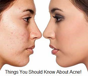 Acne Skin Care Causes & Treatment