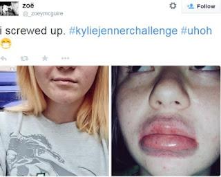 aspirador puntos negros parecido lip plumper Kylie Jenner