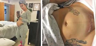 Νεαρή μητέρα πίστευε πως η καισαρική ήταν η εύκολη λύση. Λίγες μέρες μετά όμως θα συνειδητοποιούσε την σοκαριστική αλήθεια!