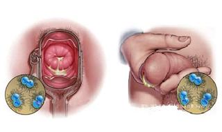 Penyabab Borok Pada Bagian Atas Penis Dan Cara Mengobatinya