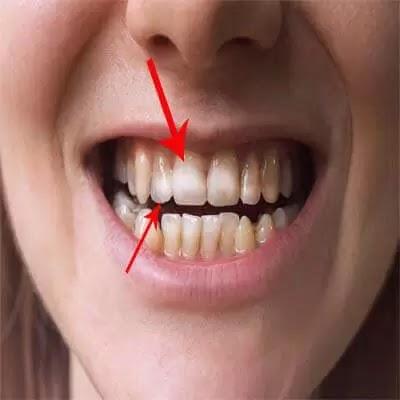 كيف تكون اسنانك هي السبب في تدهور صحتك ؟!