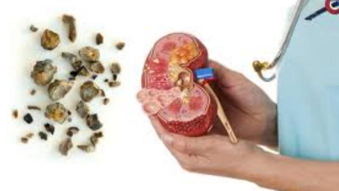 Nama Obat Batu Ginjal Di Apotik Paling Ampuh Dari Dokter