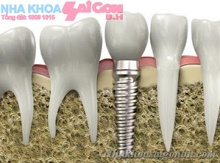 Implant Rang 1