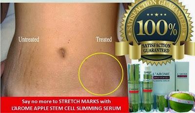 cara menghilangkan stretch mark setelah melahirkan