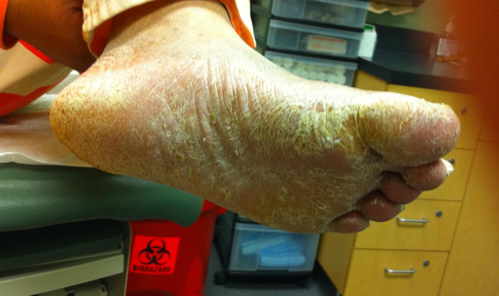 entumecimiento en los dedos de manos y pies diabetes