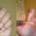 Este truco con vinagre para las uñas esta volviendo a las mujeres locas