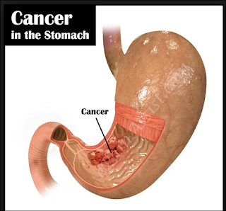 signs-of-stomach-cancer-symptoms