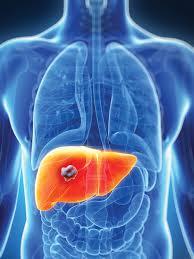 Obat Penghancur Tumor Di Hati Tradisional